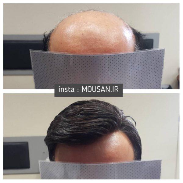 نمونه قبل و بعد کاشت موی طبیعی 1