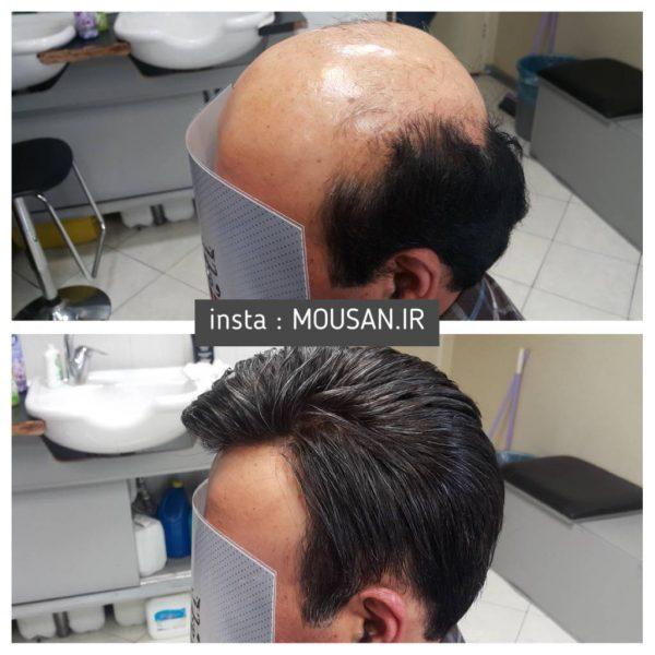 ترمیم مو با موی طبیعی 1