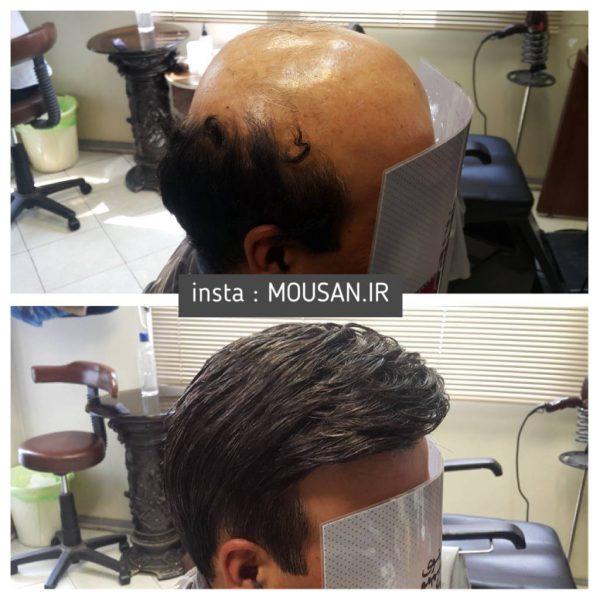 کلاه گیس با موی طبیعی 1