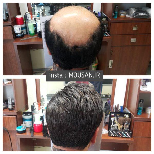 ترمیم مو یا پیوند مو