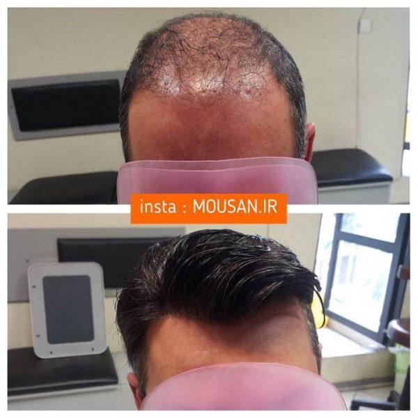 هزینه کاشت موی سر 2