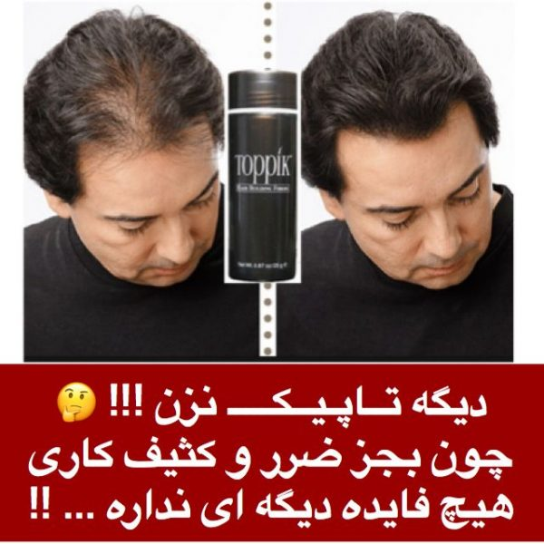 ترمیم مو بدون نیاز به تاپیک!