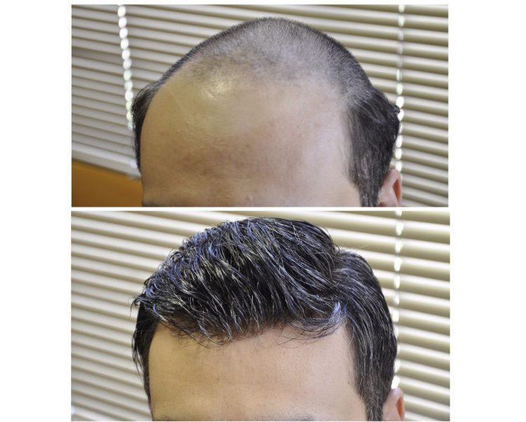 ترمیم مو با روشی 100% طبیعی
