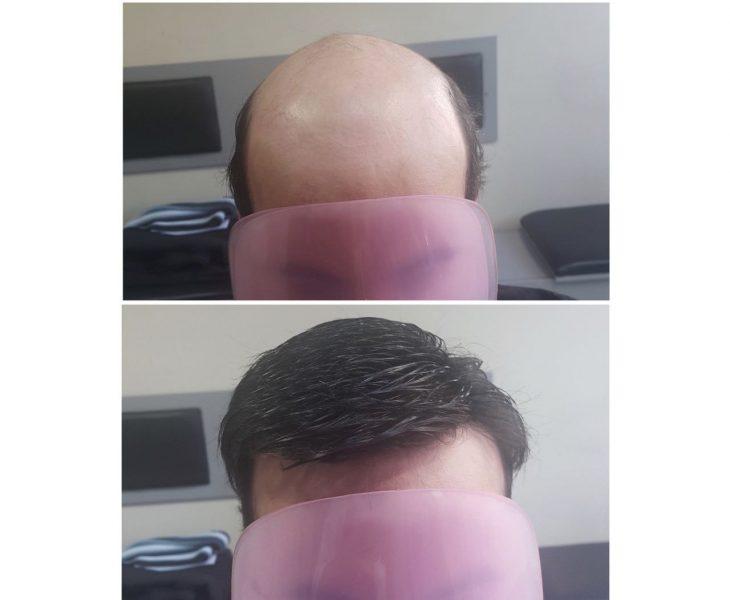 بهترین روش ترمیم مو طبیعی