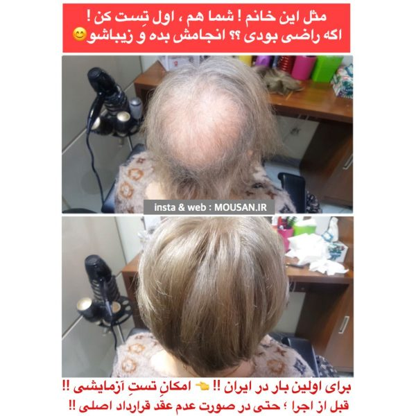 ترمیم مو بانوان بدون درد و جراحی