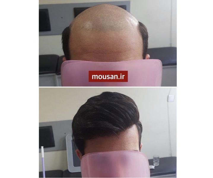 ترمیم مو بدون درد و جراحی!