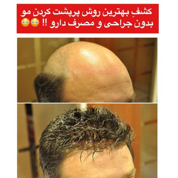 بهترین روش ترمیم مو