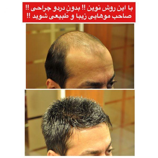 روش نوین برای ترمیم مو