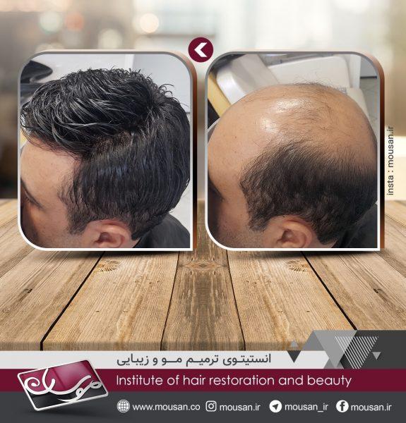 مقایسه پروتز مو با پیوند مو